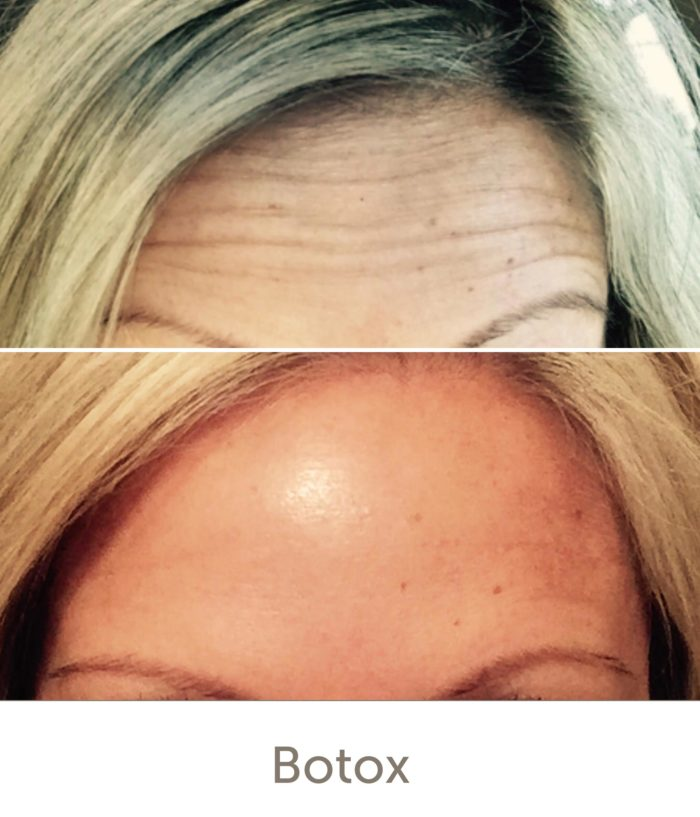 Before and After Botox Treatment | Athena Skin and body, Medical Spa in Raleigh, NC