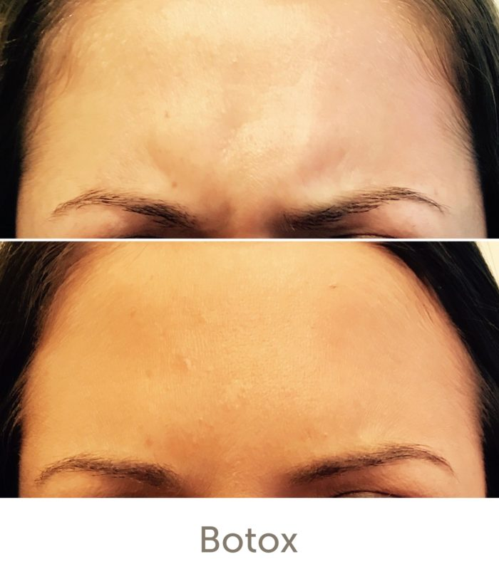 Before and After Wrinkle Reduction Treatment | Athena Skin and body, Medical Spa in Raleigh, NC