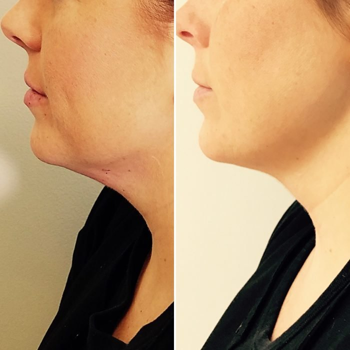 Before and After Double Chin Treatment | Athena Skin and body, Medical Spa in Raleigh, NC