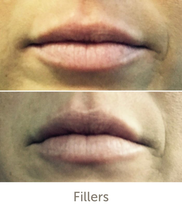 Before and After Lip Enhancement Treatment | Athena Skin and body, Medical Spa in Raleigh, NC