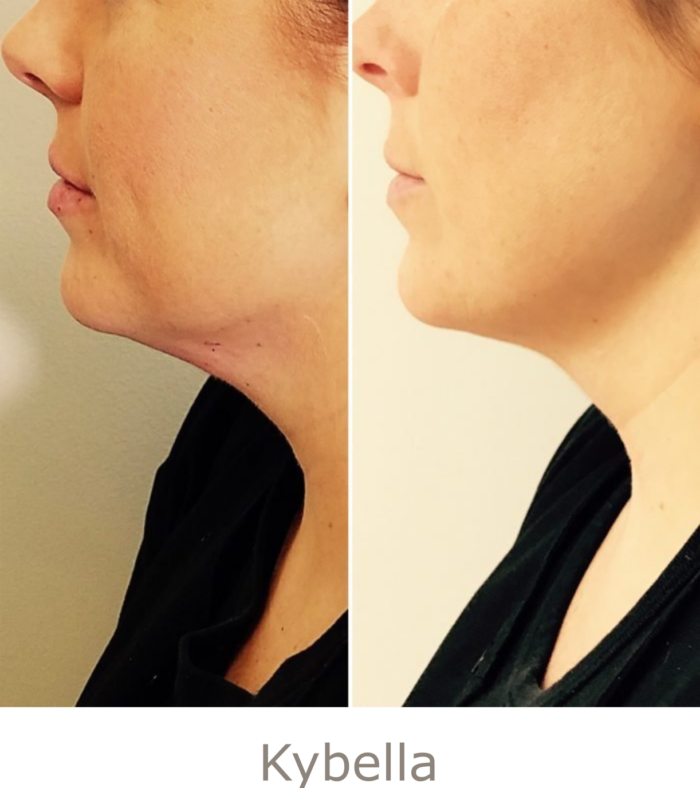 Before and After Kybella Treatment | Athena Skin and body, Medical Spa in Raleigh, NC