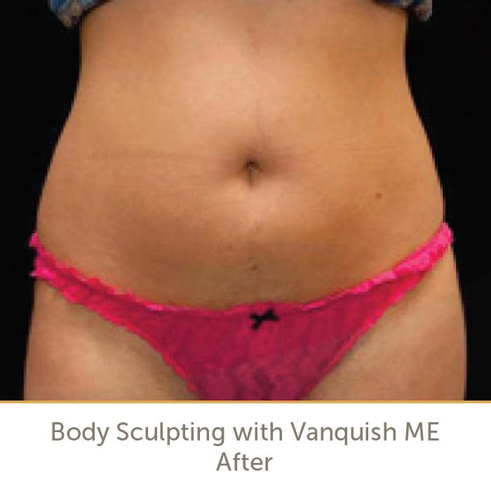 After Vanquish ME Body Contouring Treatment in Raleigh | Athena Skin and body, Medical Spa in Raleigh, NC