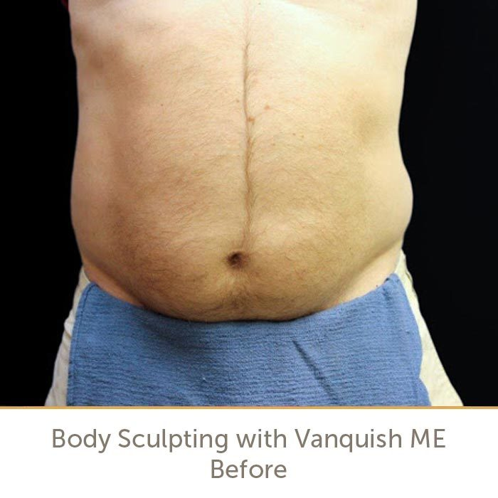 Before Vanquish ME Body Contouring Treatment in Raleigh | Athena Skin and body, Medical Spa in Raleigh, NC