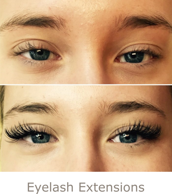 Before and After Eyelash Extensions | Athena Skin and body, Medical Spa in Raleigh, NC