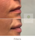 Before and After FillersTreatment | Athena Skin and body, Medical Spa in Raleigh, NC
