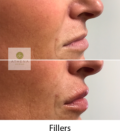 Before and After Fillers Treatment | Athena Skin and body, Medical Spa in Raleigh, NC